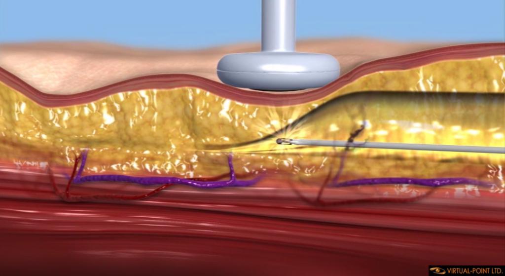 Medical Animation Videos